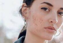 acne 2020